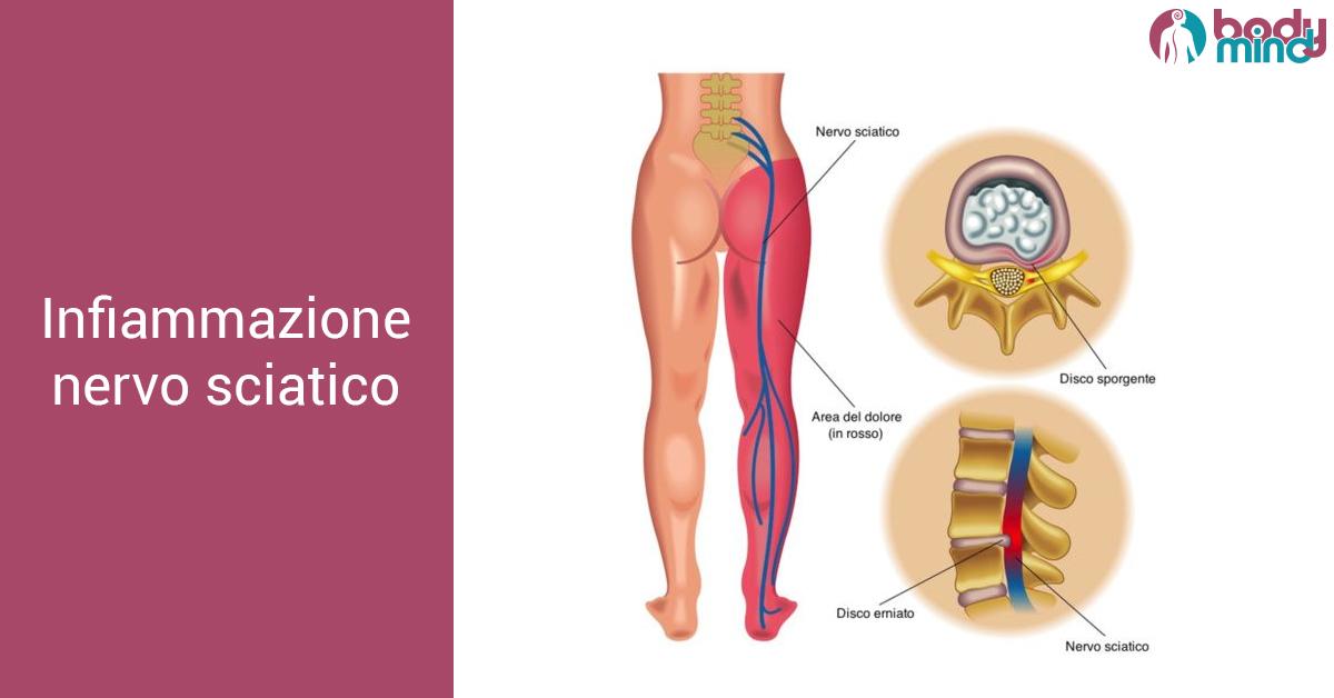 Sciatica (sciatalgia): sintomi, dolore, rimedi, dolore, gravidanza